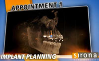 3D Implants  Guided Implant Placement 6